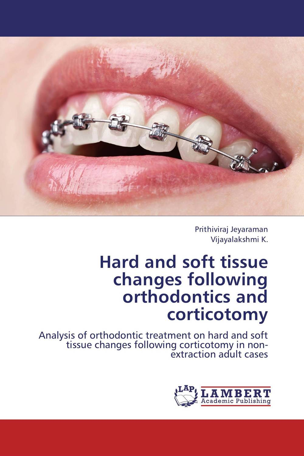 Hard and soft tissue changes following orthodontics and corticotomy ragini suri naso alveolar molding an orthodontic perspective