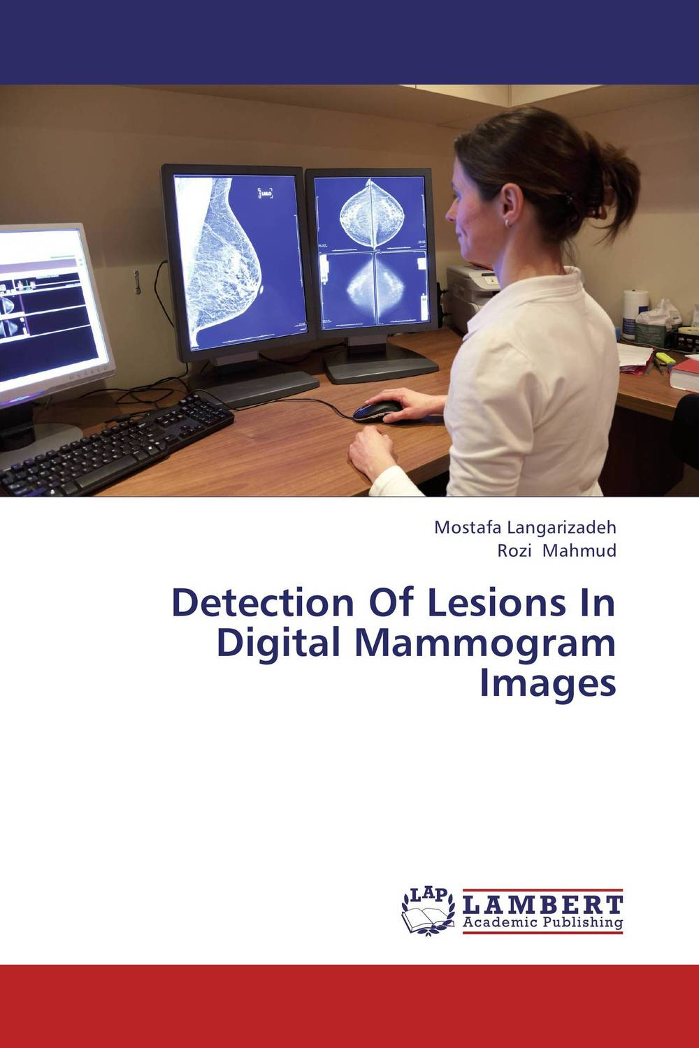 Detection Of Lesions In Digital Mammogram Images  andre correia sousa computer assisted diagnosis of cancerous lesions in chromoendoscopy