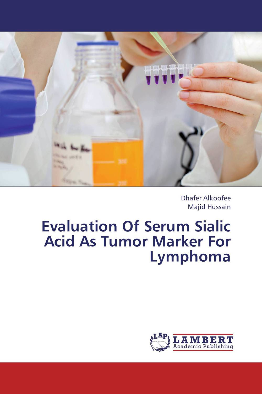 Evaluation Of Serum Sialic Acid As Tumor Marker For Lymphoma unusual causes of raised serum alanine aminotransferase