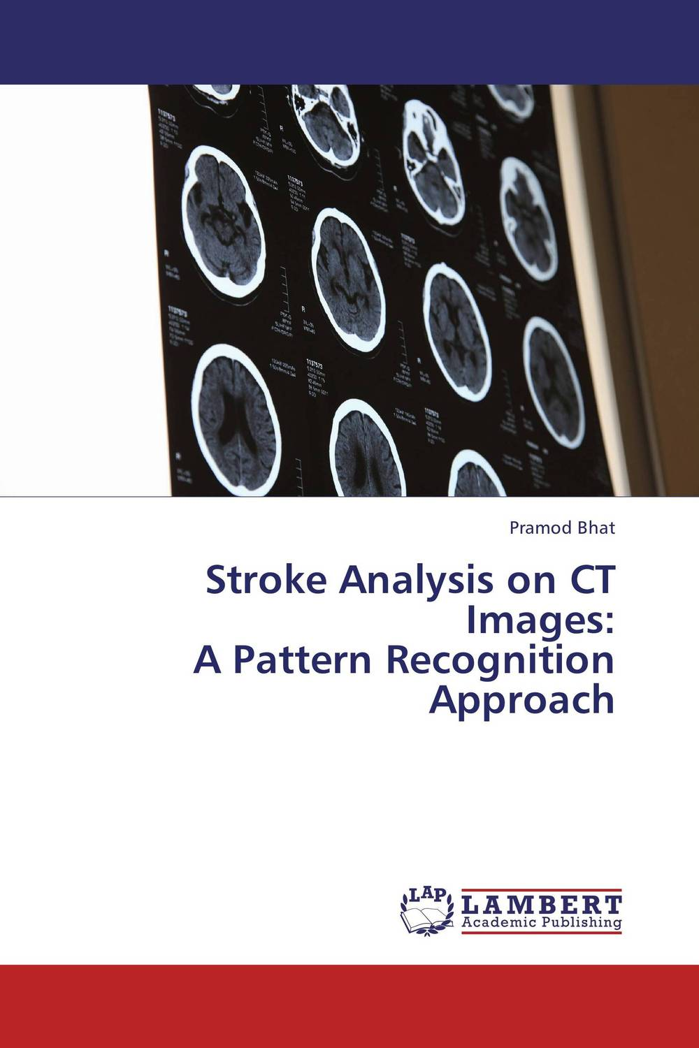 Stroke Analysis on CT Images:   A Pattern Recognition Approach analysis of bacterial colonization on gypsum casts