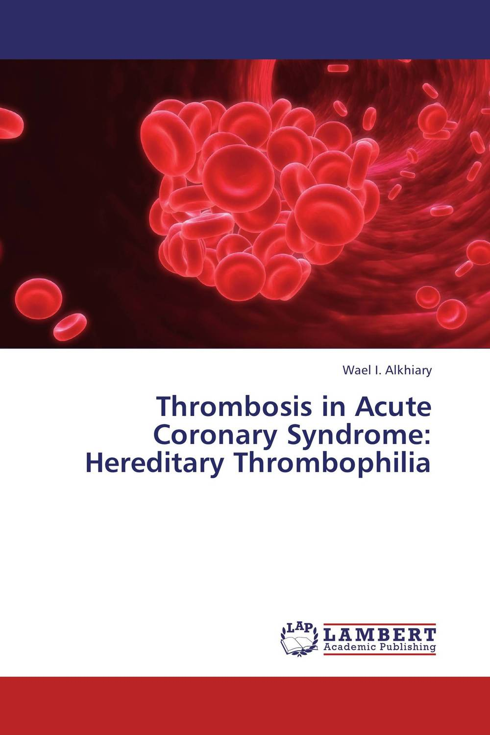 Thrombosis in Acute Coronary Syndrome: Hereditary Thrombophilia coronary heart disease atherosclerosis model coronary thrombosis model