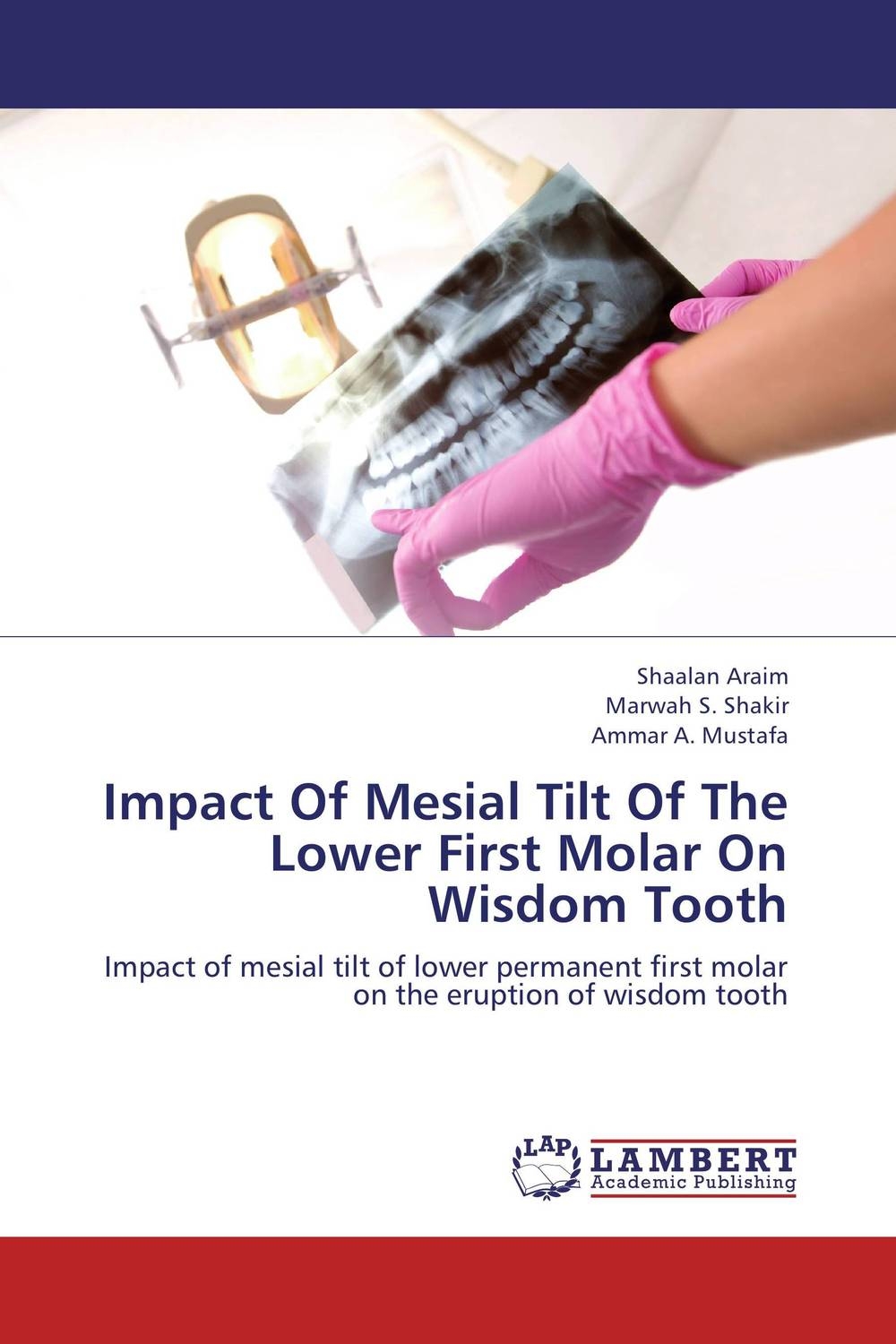 Impact Of Mesial Tilt Of The Lower First Molar On Wisdom Tooth
