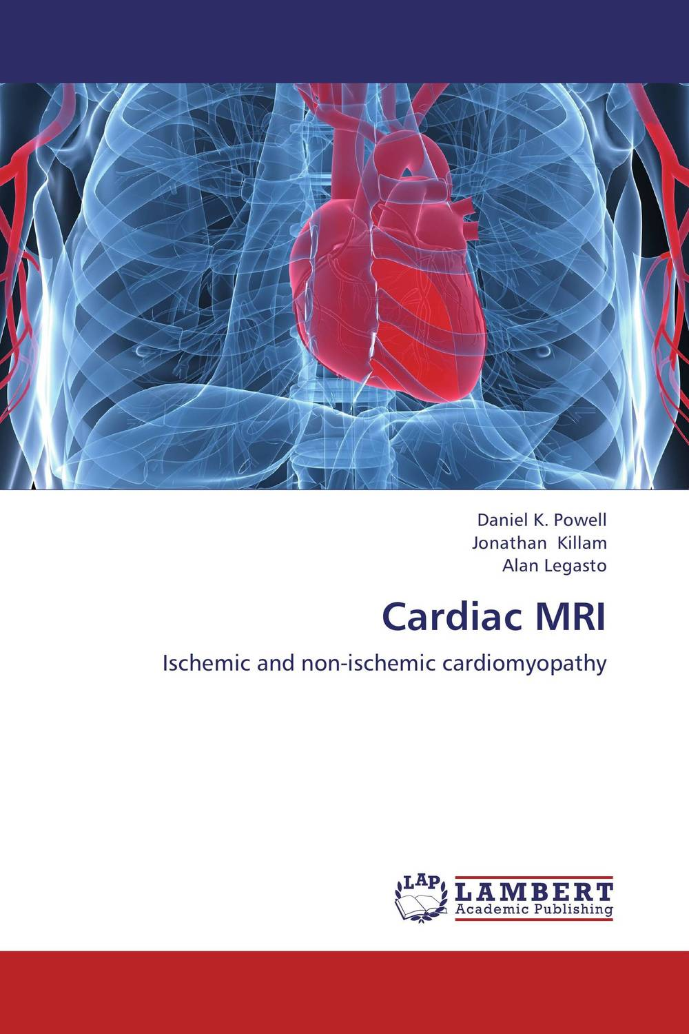Cardiac MRI do snps underlie drug abuse and cardiac disease comorbidity