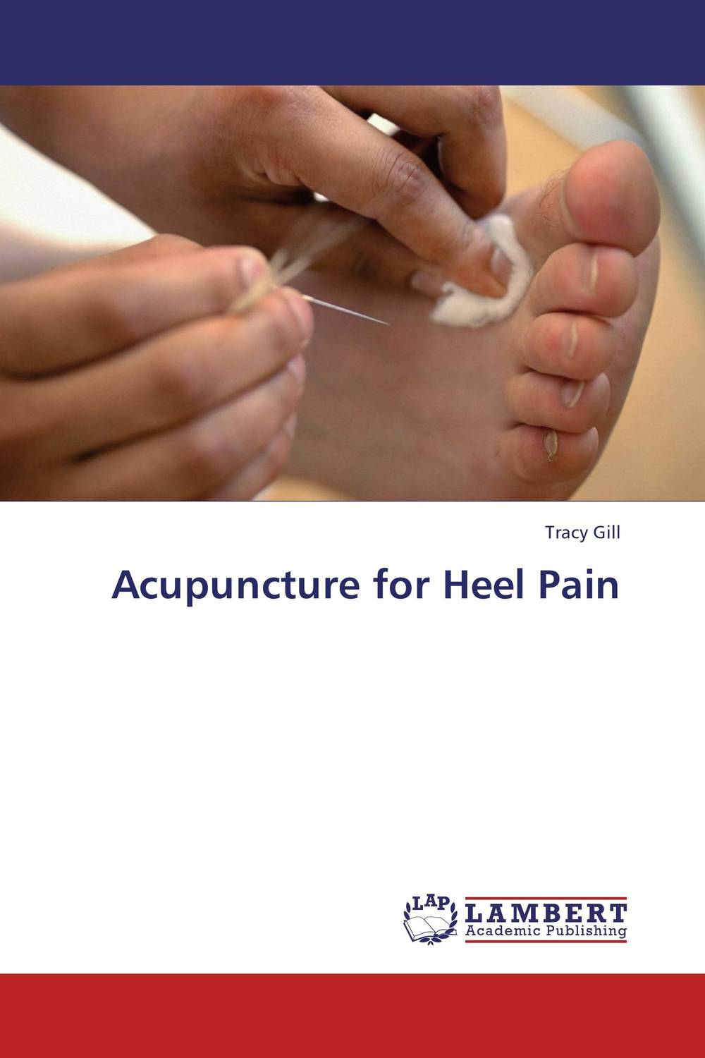 Acupuncture for Heel Pain