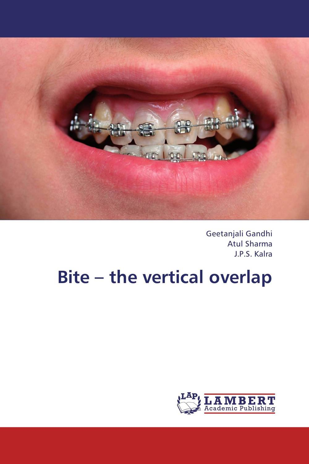 Bite – the vertical overlap