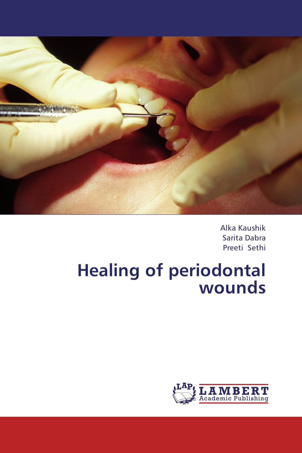 Healing of periodontal wounds chandni monga amarjit singh gill and paramjit kaur khinda periodontal regenerative therapy
