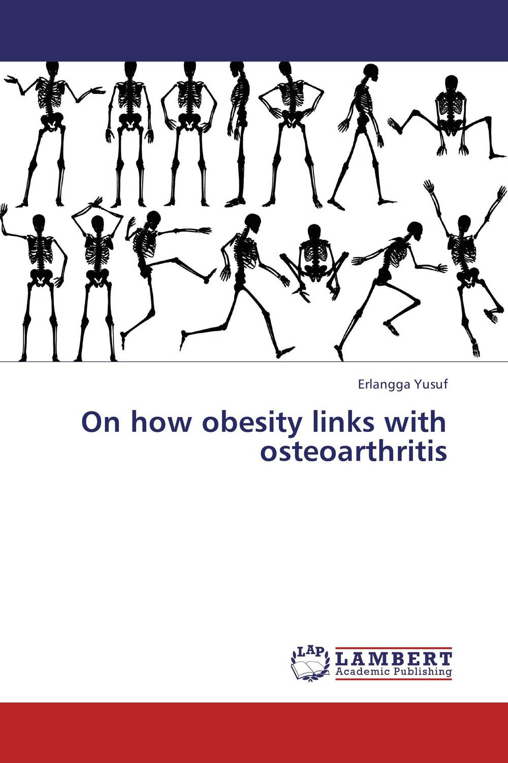 On how obesity links with osteoarthritis