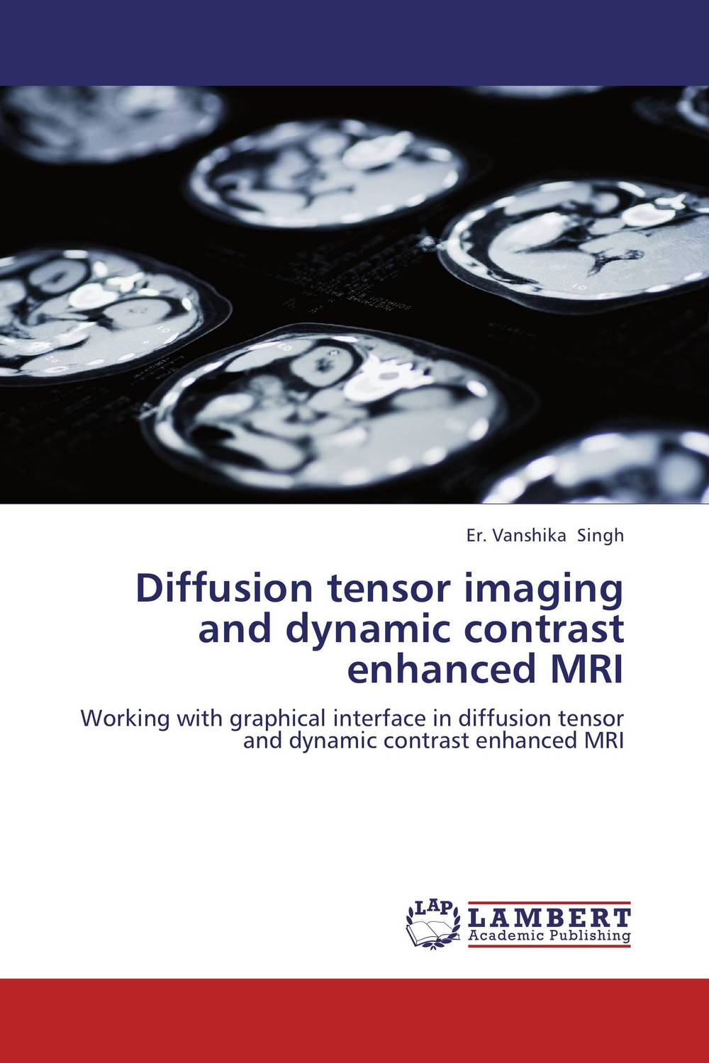 Diffusion tensor imaging and dynamic contrast enhanced MRI imaging of the human brain in health and disease