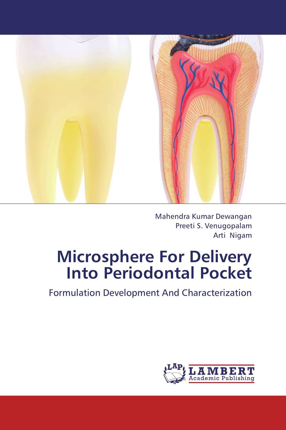 Microsphere For Delivery Into Periodontal Pocket new arrival classification of periodontal diseases teeth model dental patient communication model process of periodontal disease
