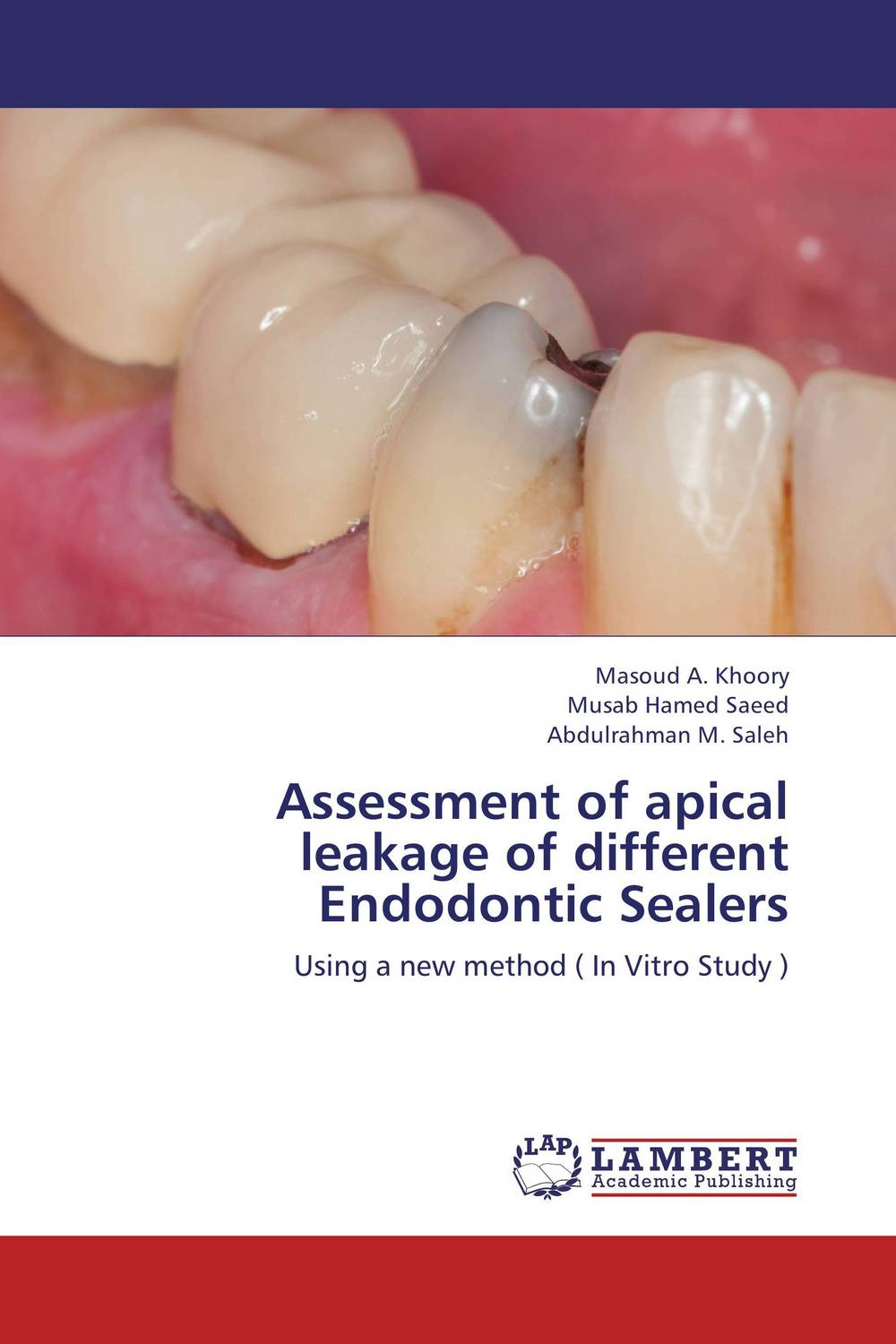 Assessment of apical leakage of different Endodontic Sealers the teeth with root canal students to practice root canal preparation and filling actually