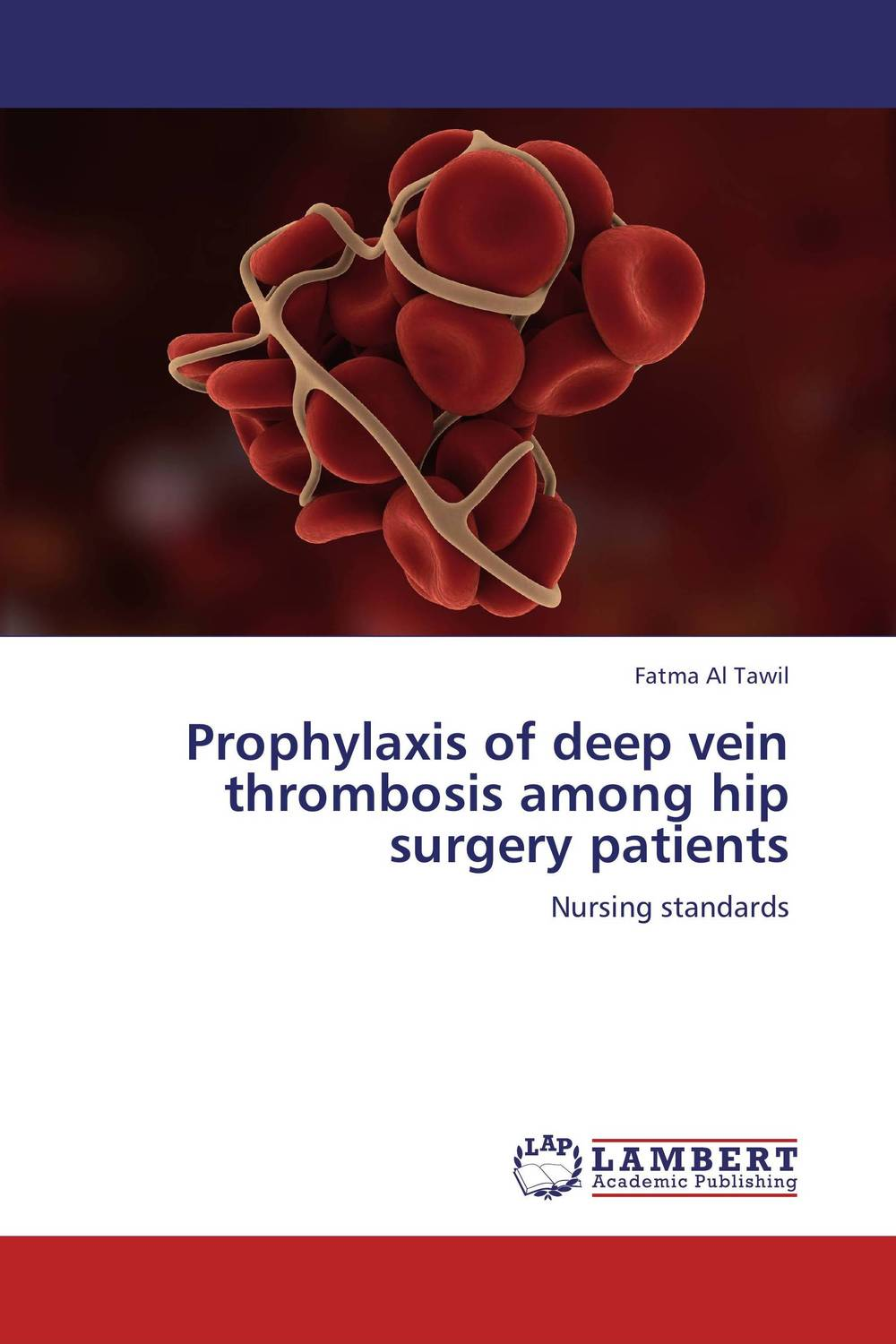 Prophylaxis of deep vein thrombosis among hip surgery patients analgesia in patients with hip fracture