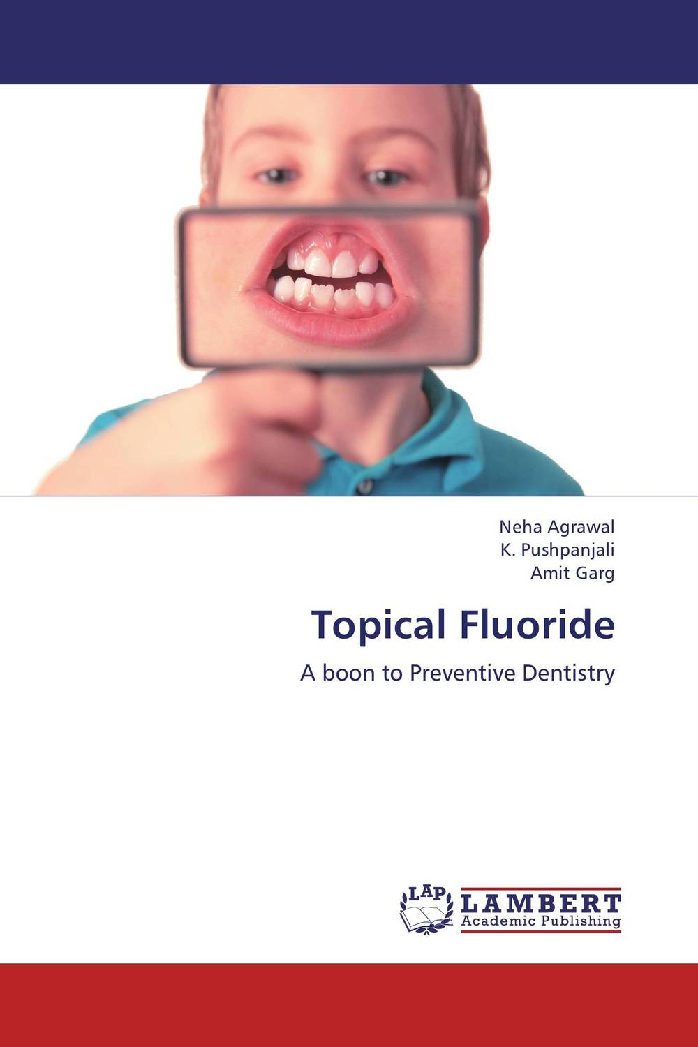 Topical Fluoride fluoride rechargeability
