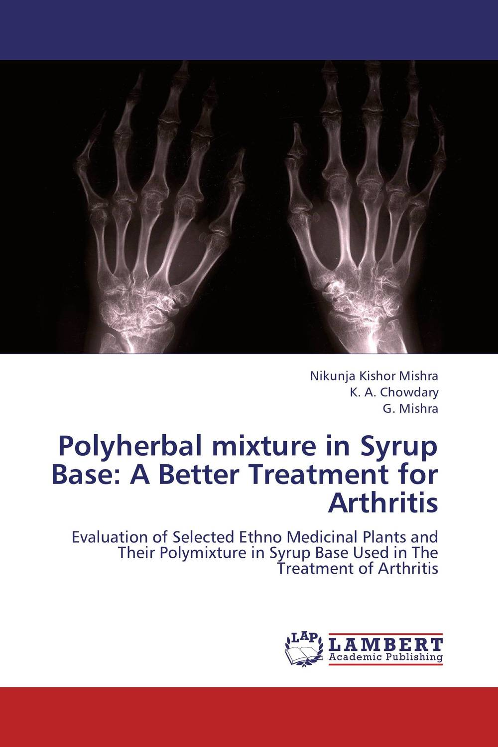 Polyherbal mixture in Syrup Base: A Better Treatment for Arthritis new techniques for early diagnosis of rheumatoid arthritis