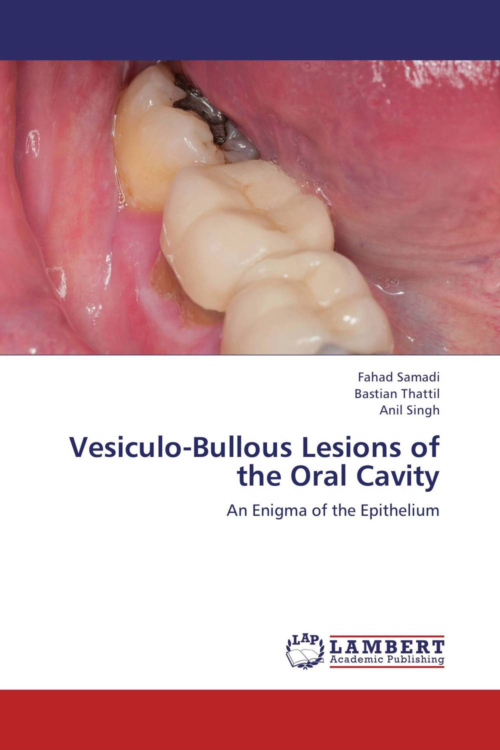 Vesiculo-Bullous Lesions of the Oral Cavity assessment of oral pre cancer and cancerous lesions in gujarat state