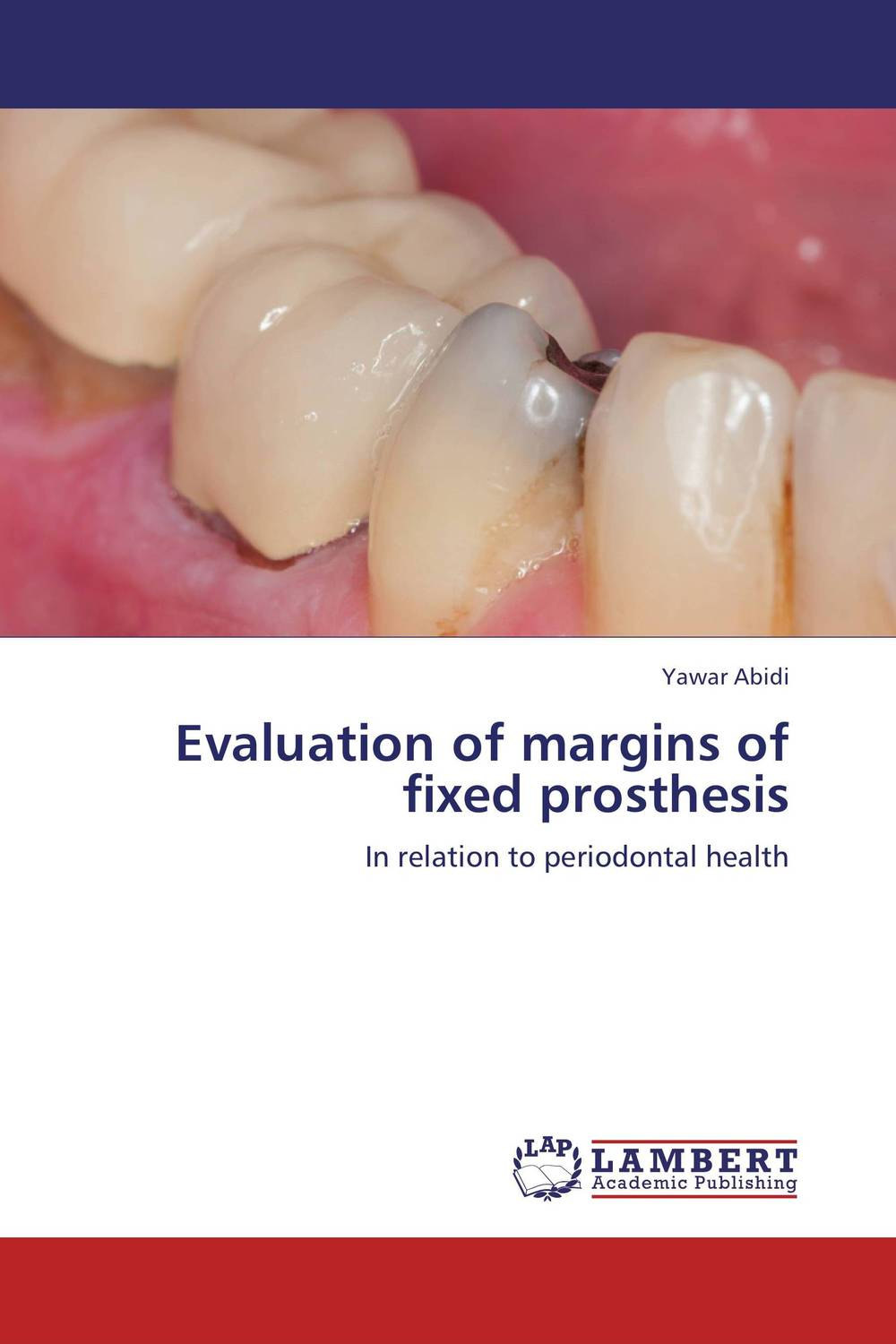 Evaluation of margins of fixed prosthesis new arrival classification of periodontal diseases teeth model dental patient communication model process of periodontal disease