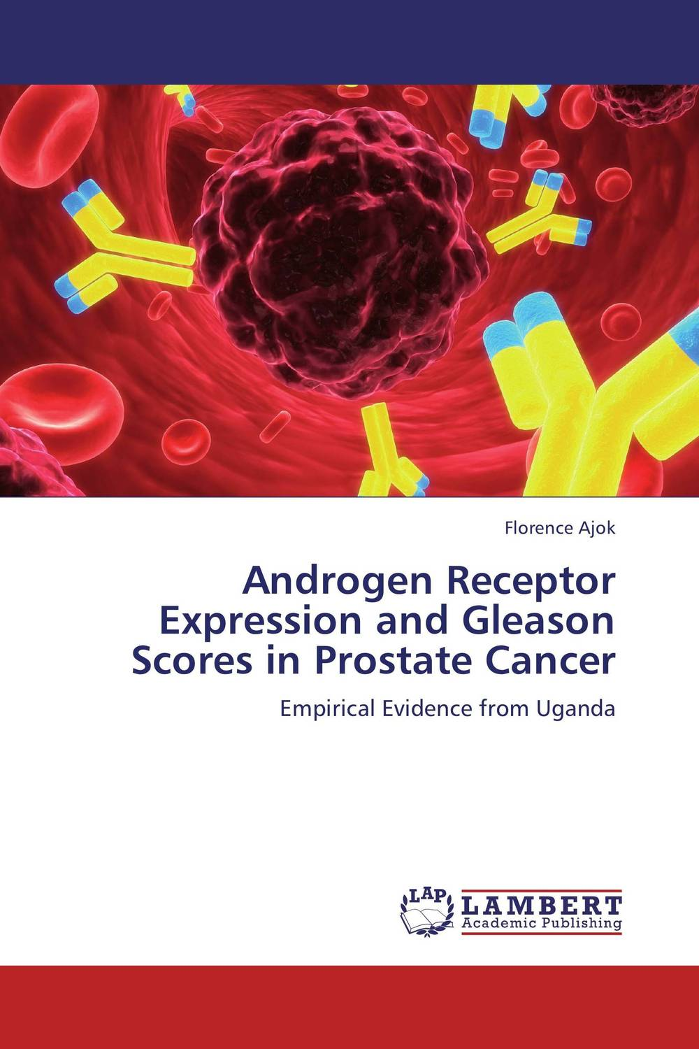 Androgen Receptor Expression and Gleason Scores in Prostate Cancer improved expression of bacterial chia in plant by codon optimisation