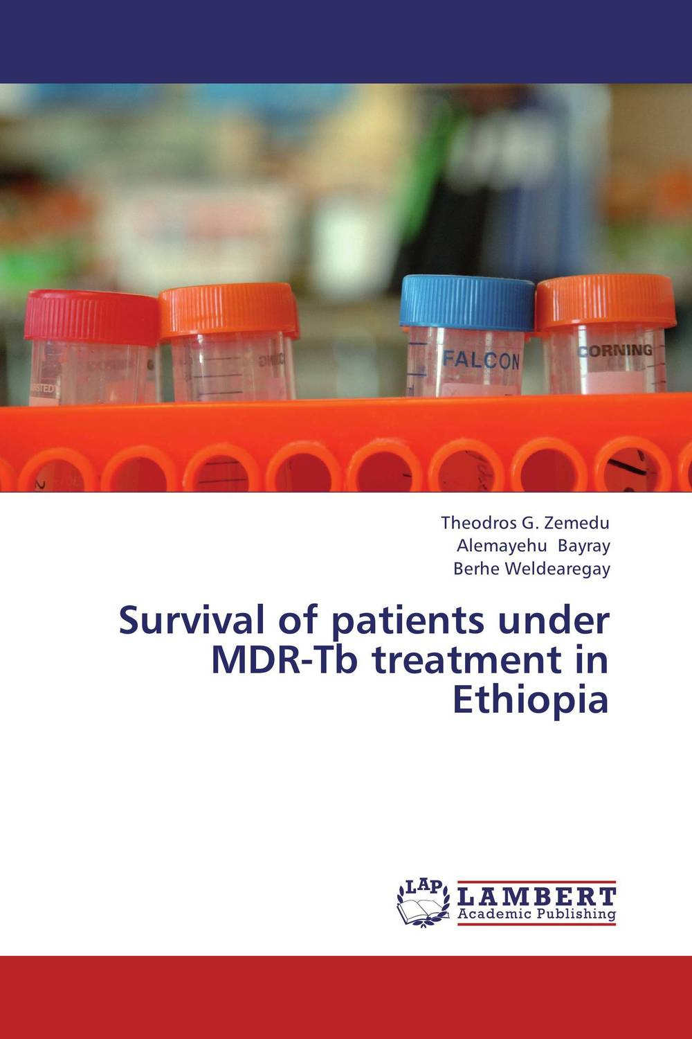 Survival of patients under MDR-Tb treatment in Ethiopia