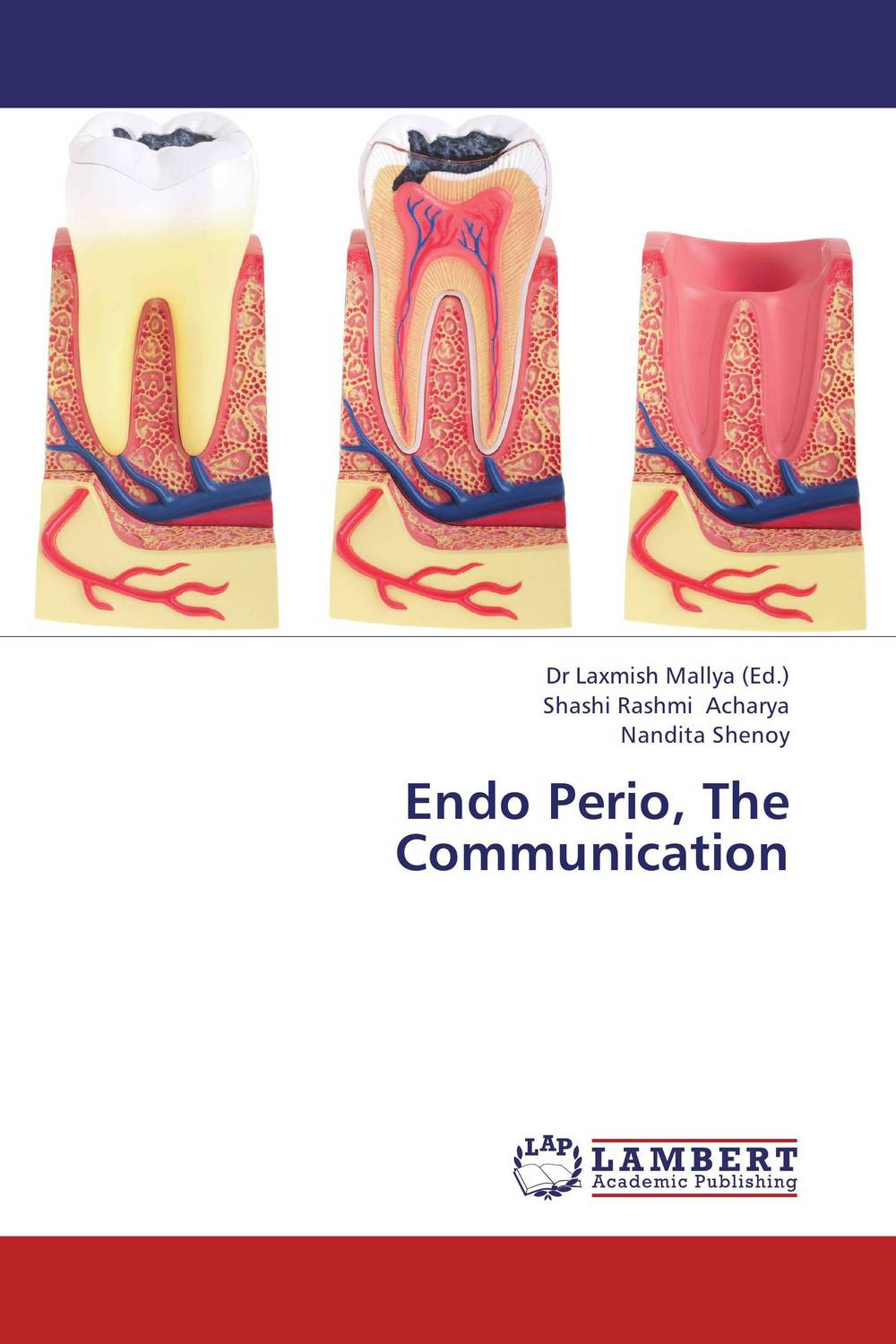 Endo Perio, The Communication non surgical endodontic management of the combined endo perio lesions