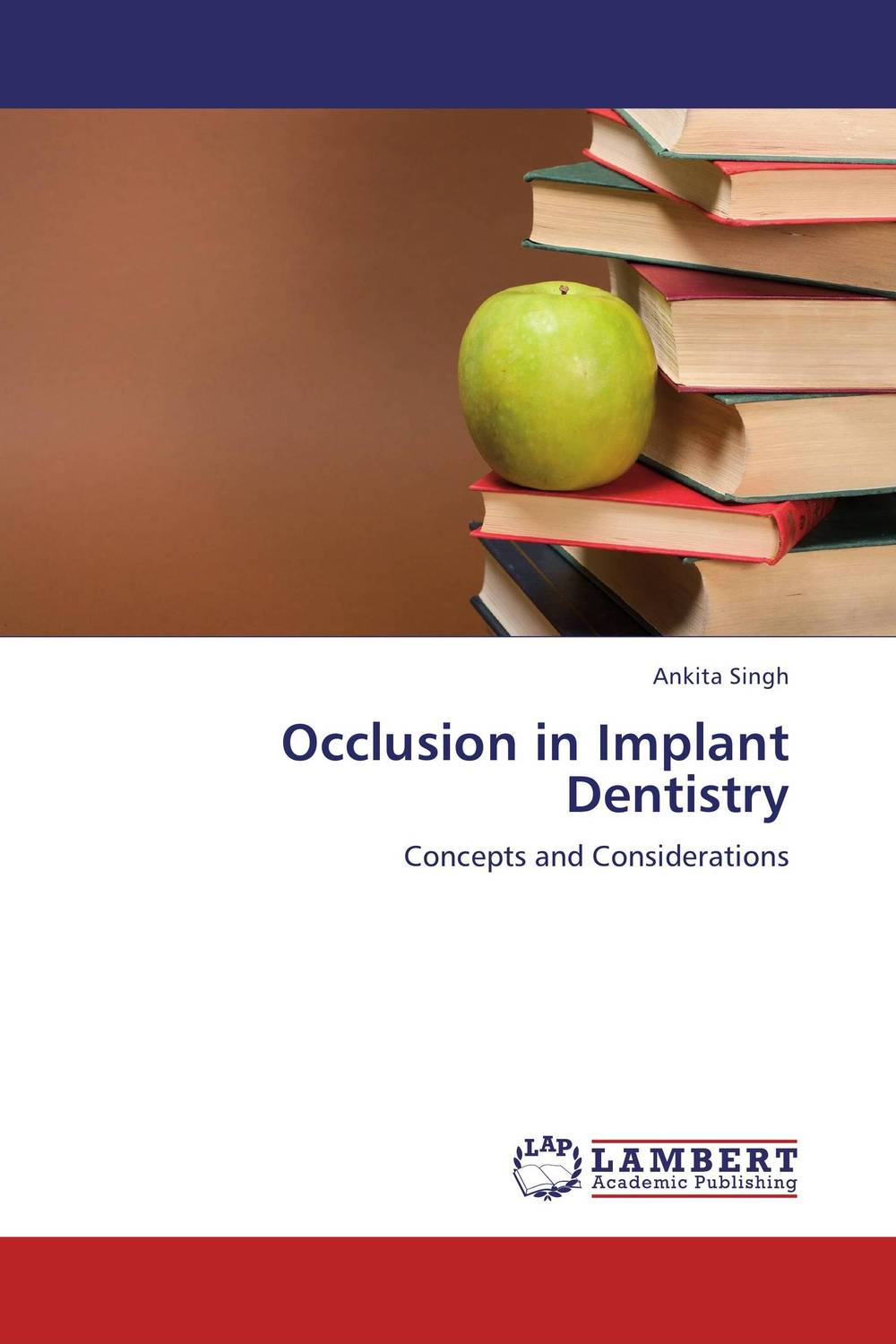 Occlusion in Implant Dentistry esthetics in implant dentistry