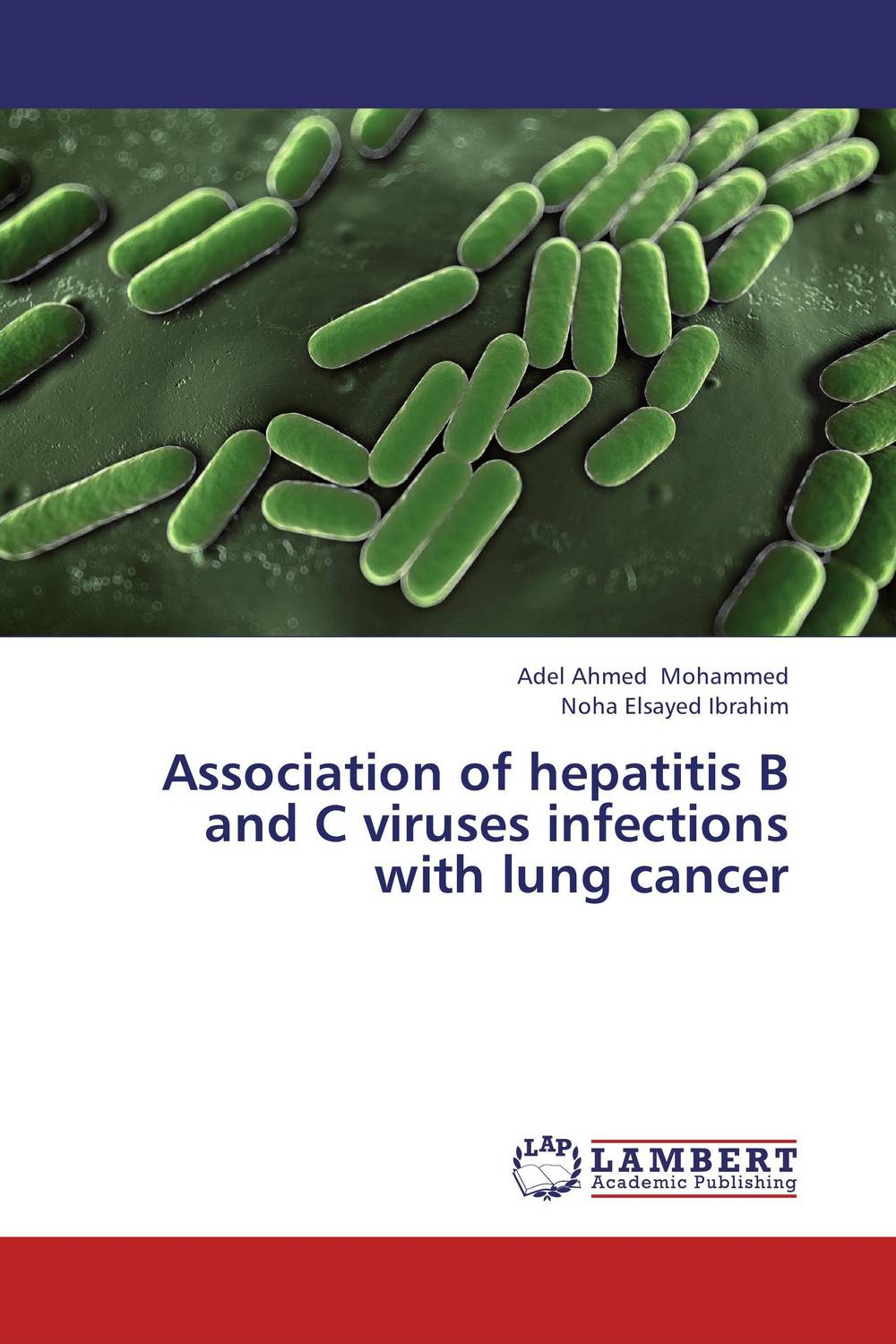 Association of hepatitis B and C viruses infections with lung cancer analysis of tp53 and promoter hypermethylation of mgmt in lung cancer