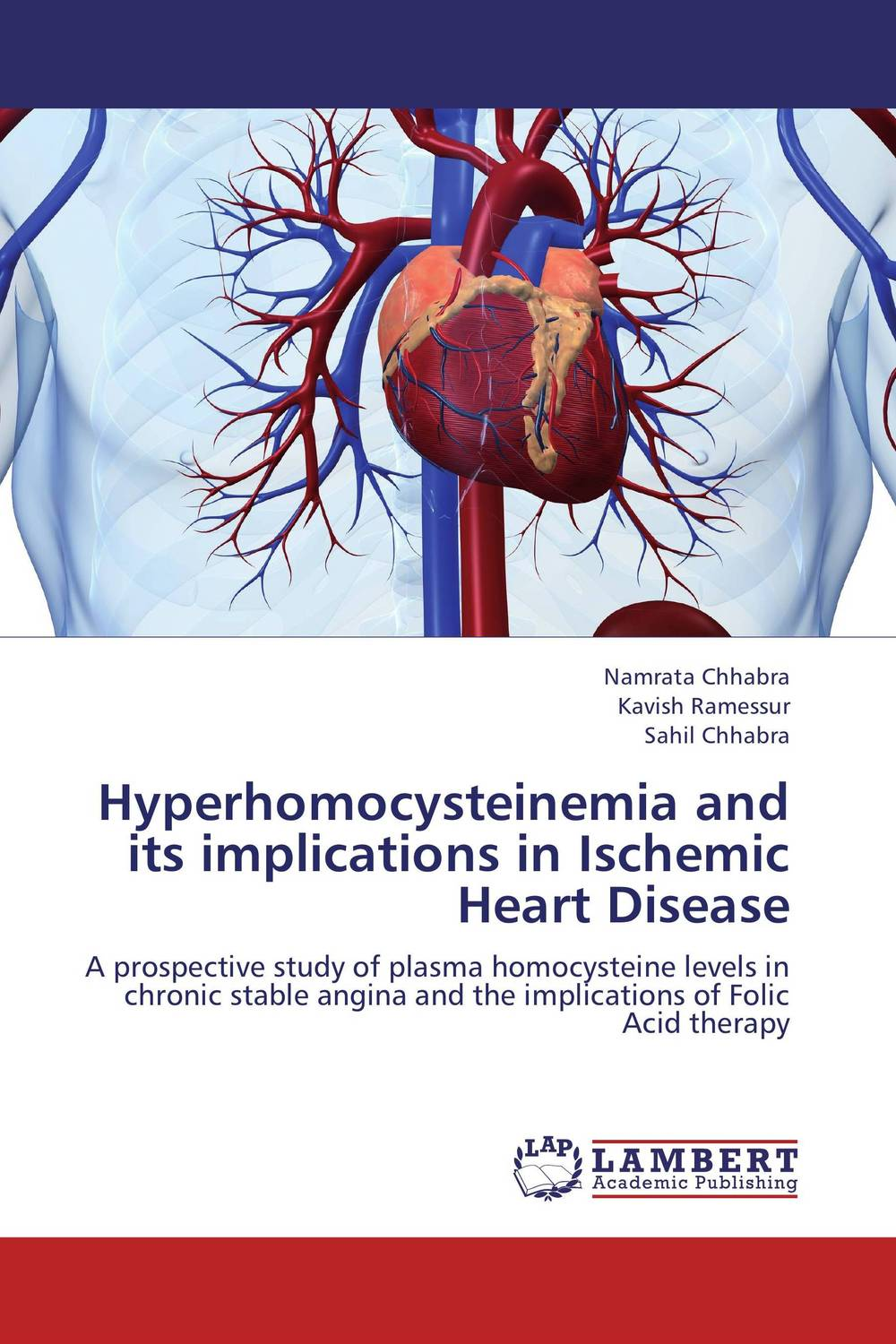 Hyperhomocysteinemia and its implications in Ischemic Heart Disease a prospective insight copd as potential risk factor for cvs disease