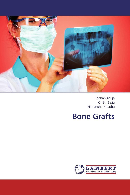 Bone Grafts prediction of bone length from bone fragments
