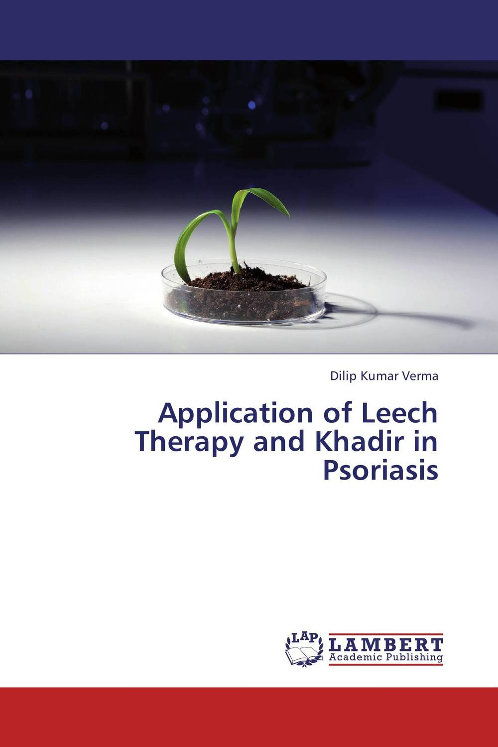 Application of Leech Therapy and Khadir in Psoriasis