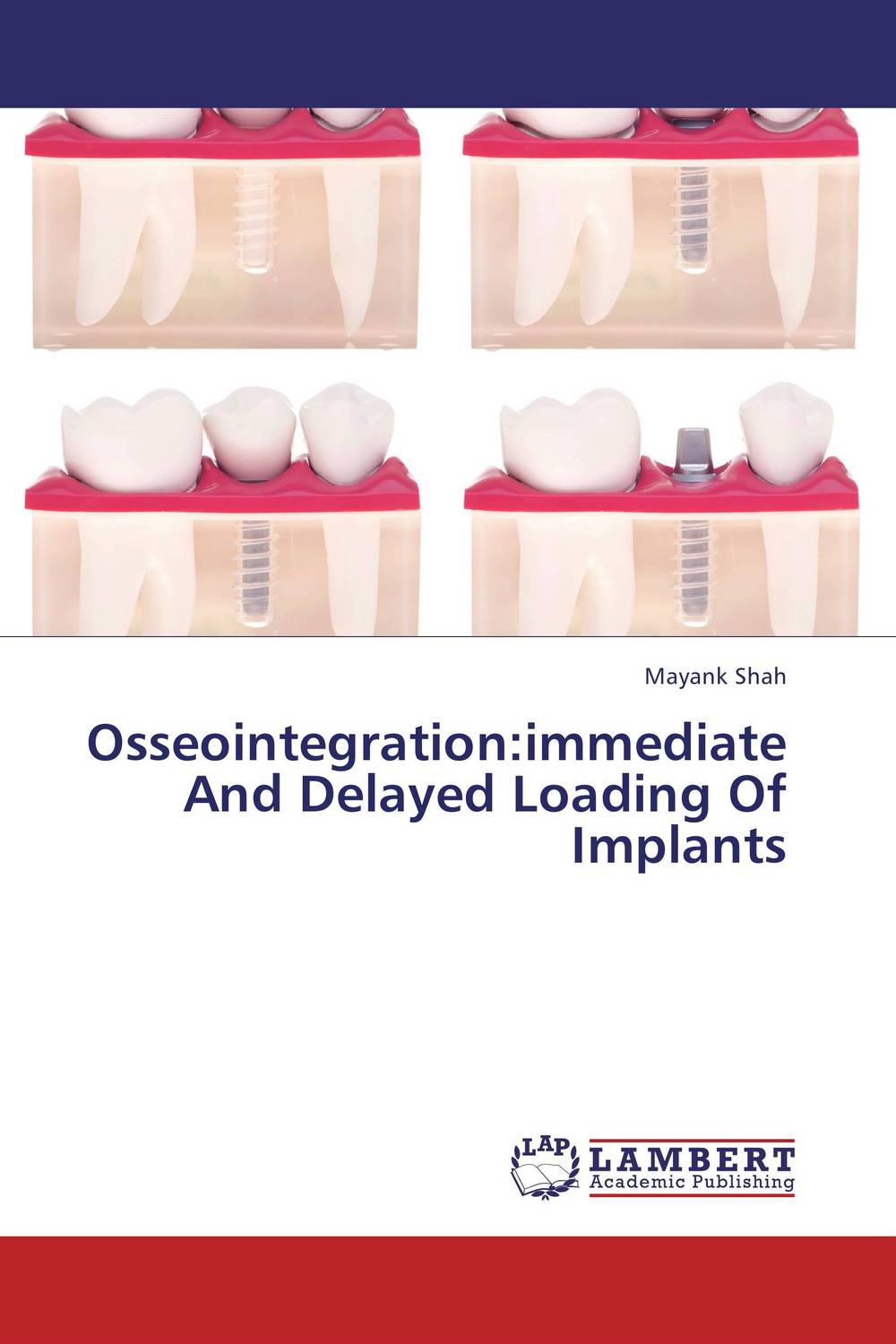 Osseointegration:immediate And Delayed Loading Of Implants shaveta kaushal and atamjit singh pal dental implants and its design