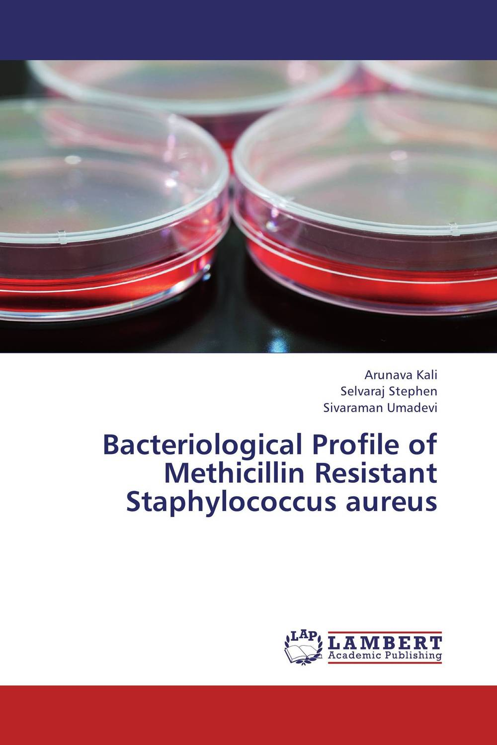 Bacteriological Profile of Methicillin Resistant Staphylococcus aureus nidhi gondaliya and sweta patel methicilin resistance staphylococcus aureus skin