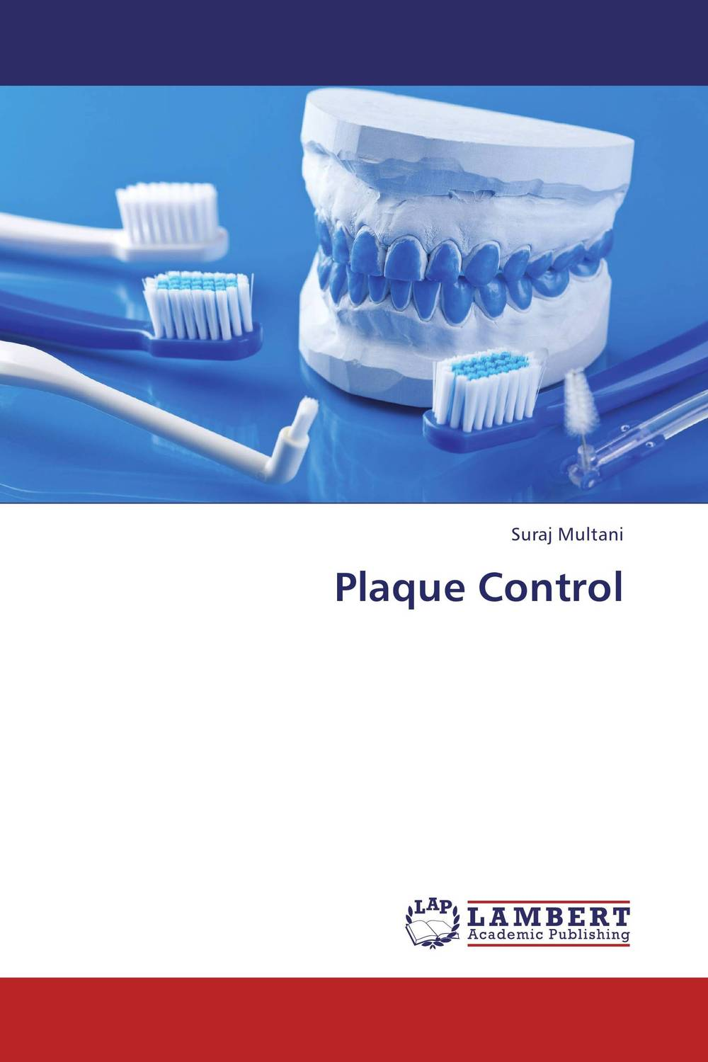Plaque Control new arrival classification of periodontal diseases teeth model dental patient communication model process of periodontal disease