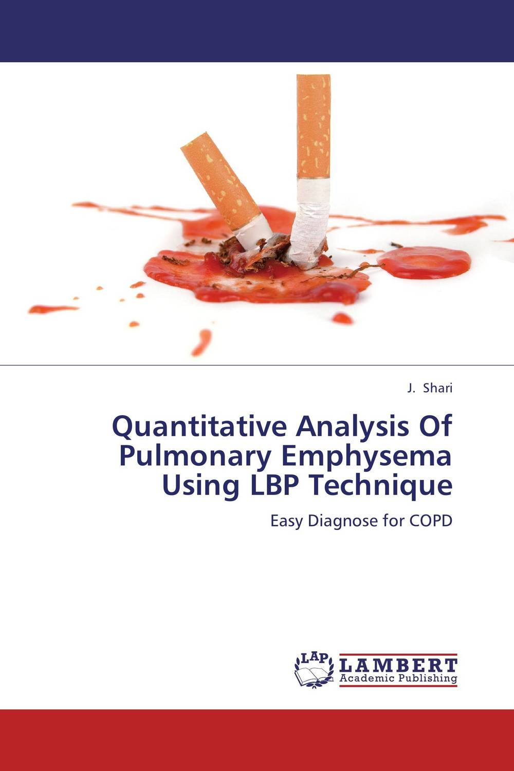 Quantitative Analysis Of Pulmonary Emphysema Using LBP Technique a novel separation technique using hydrotropes