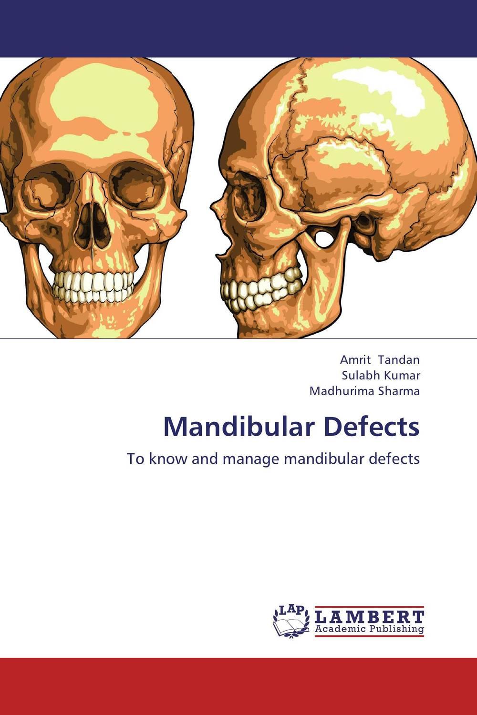 Mandibular Defects congenital heart defects