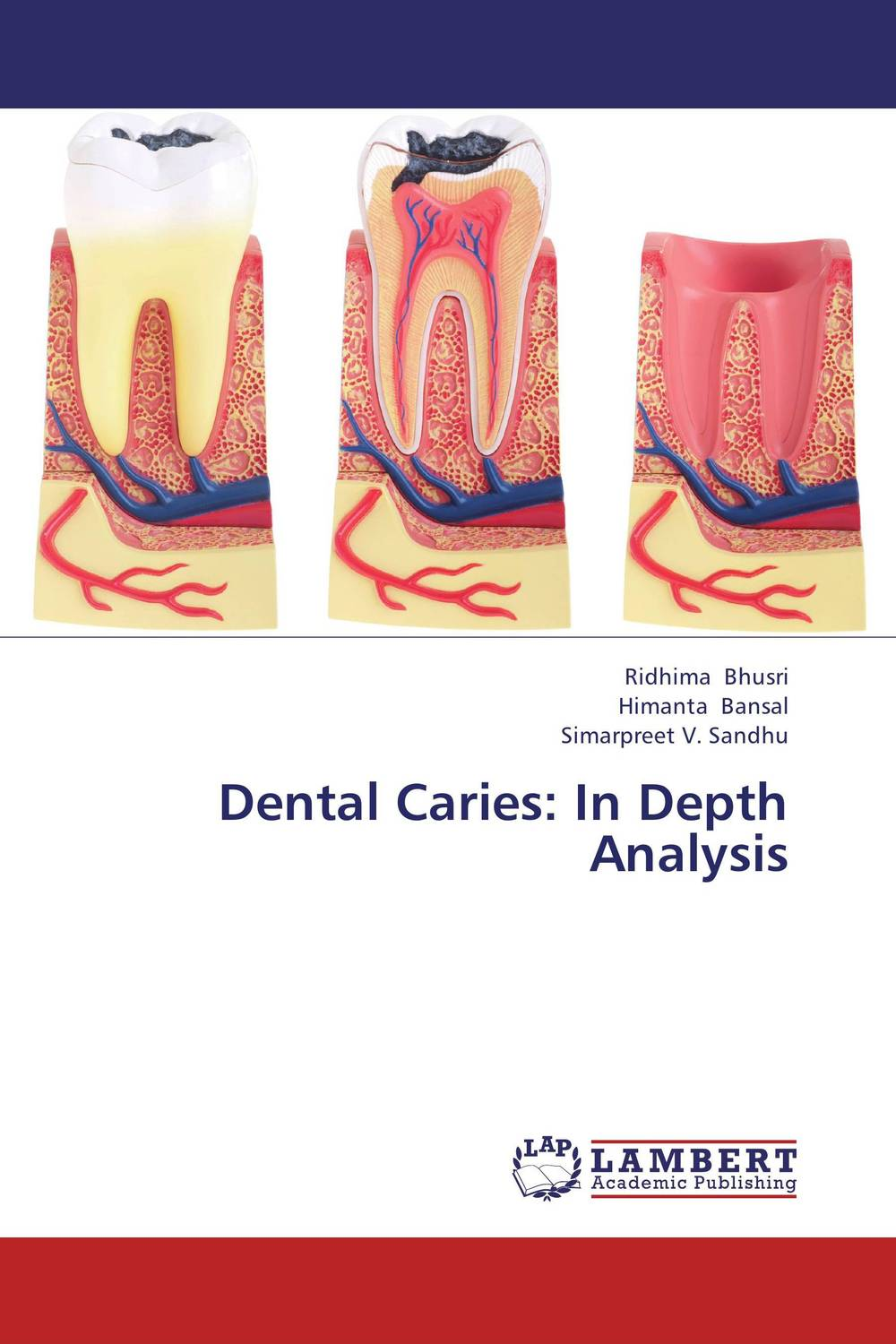 Dental Caries: In Depth Analysis new arrival dental all teeth removable standard teeth tooth model 28 pcs teeth student learning model