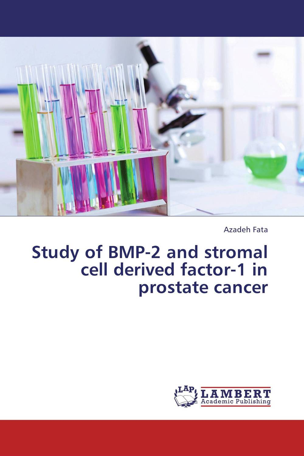 Study of BMP-2 and stromal cell derived factor-1 in prostate cancer benign enlargement of prostate gland bep in ayurveda