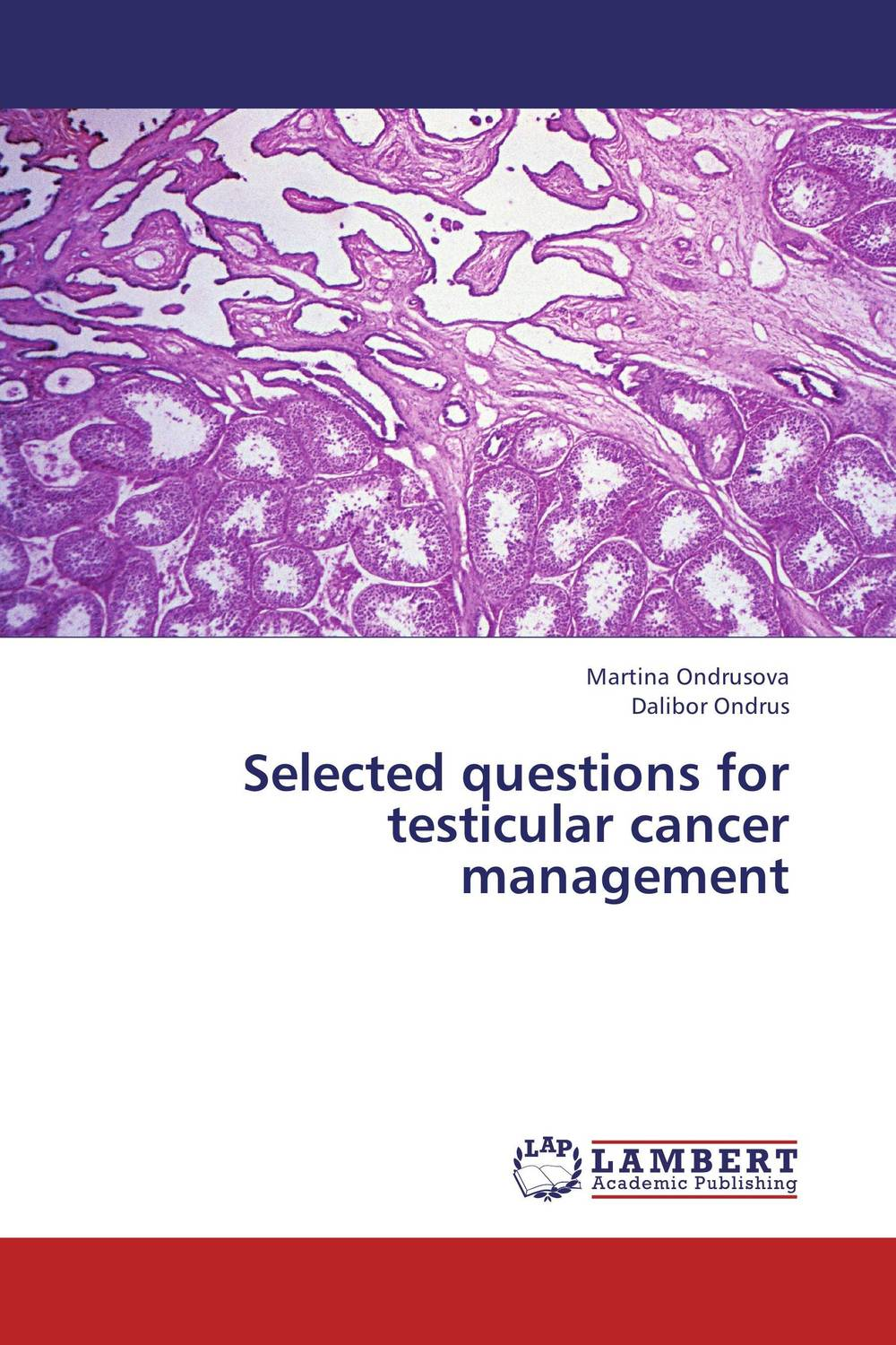 Selected questions for testicular cancer management late stage diagnosis of cervical cancer