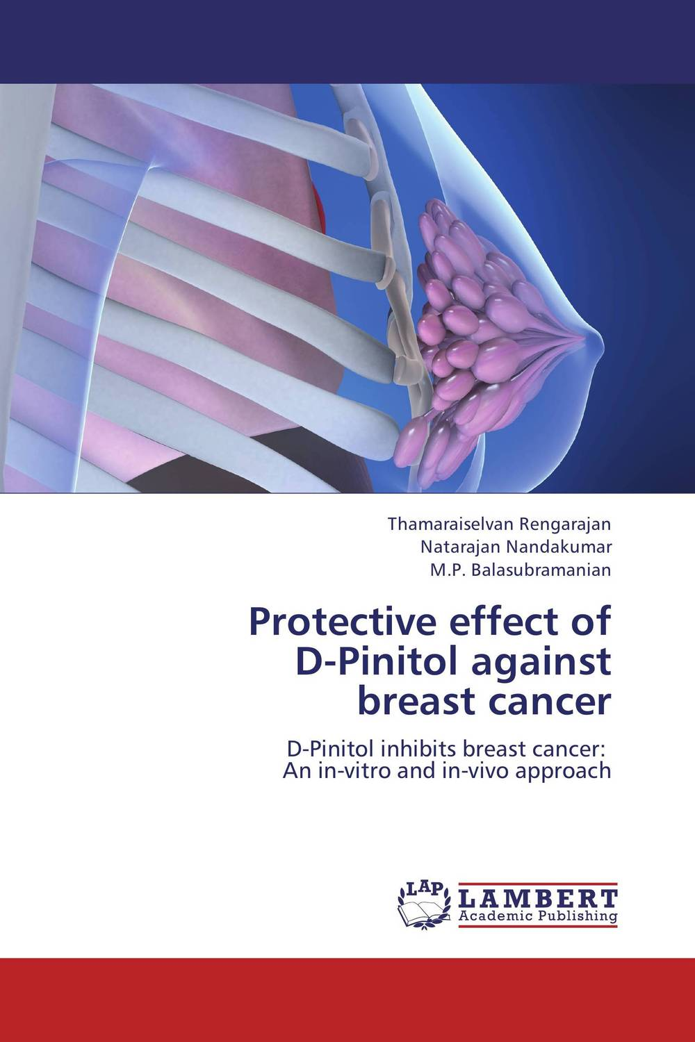 Protective effect of   D-Pinitol against   breast cancer choices in breast cancer treatment – medical specialists and cancer survivors tell you what you need to know