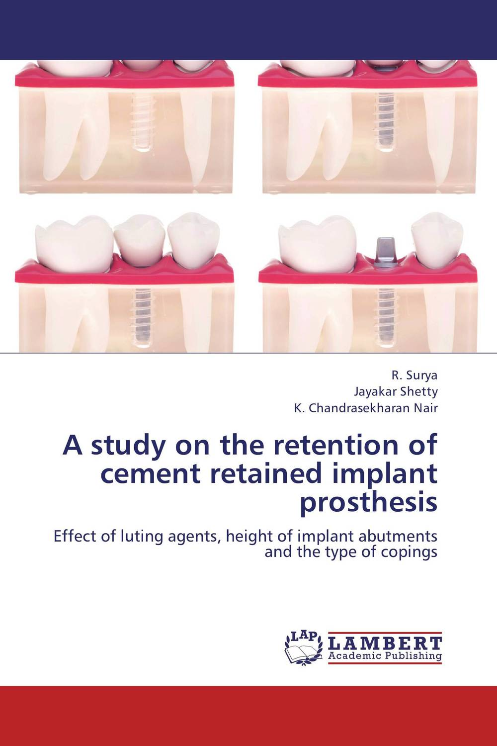 A study on the retention of cement retained implant prosthesis attachments retaining implant overdentures