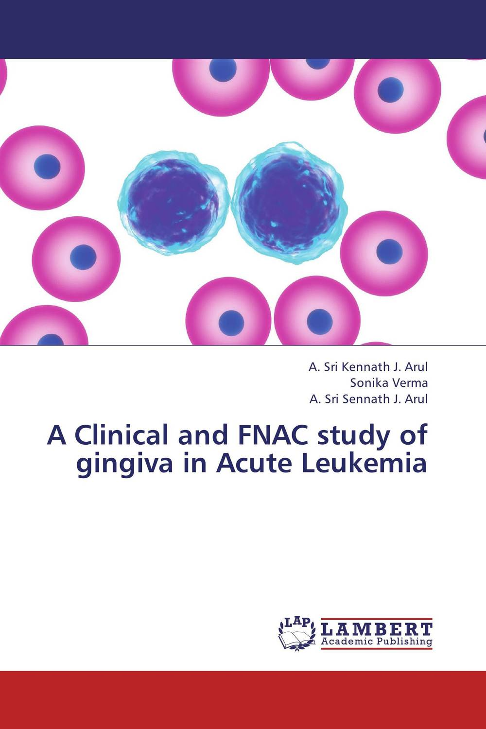 A Clinical and FNAC study of gingiva in Acute Leukemia haptoglobin phenotypes distribution among sudanese leukemic patients