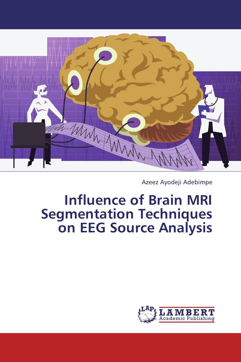 Influence of Brain MRI Segmentation Techniques  on EEG Source Analysis clustering and optimization based image segmentation techniques