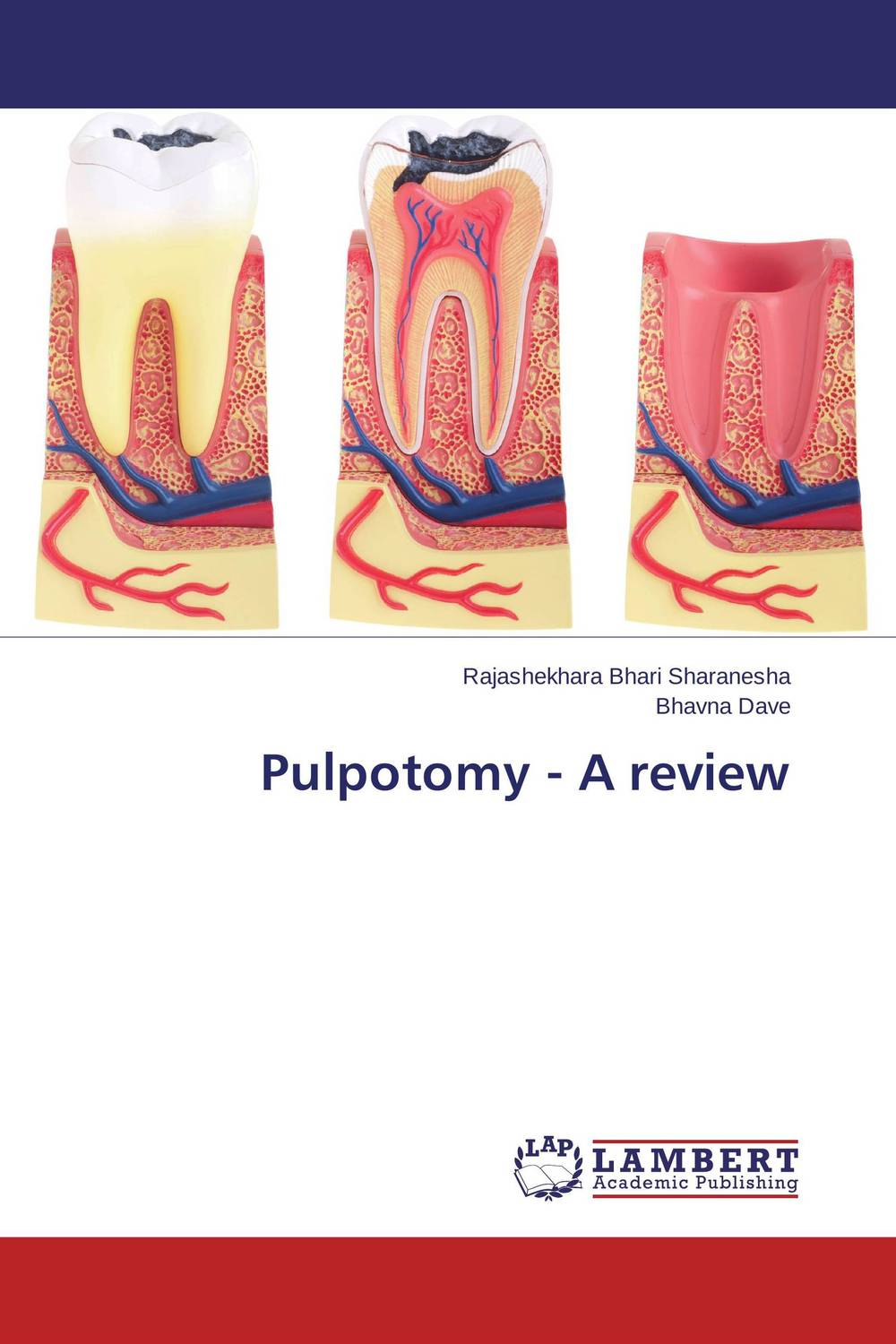 Pulpotomy - A review mary jane sterling algebra ii 1 001 practice problems for dummies free online practice