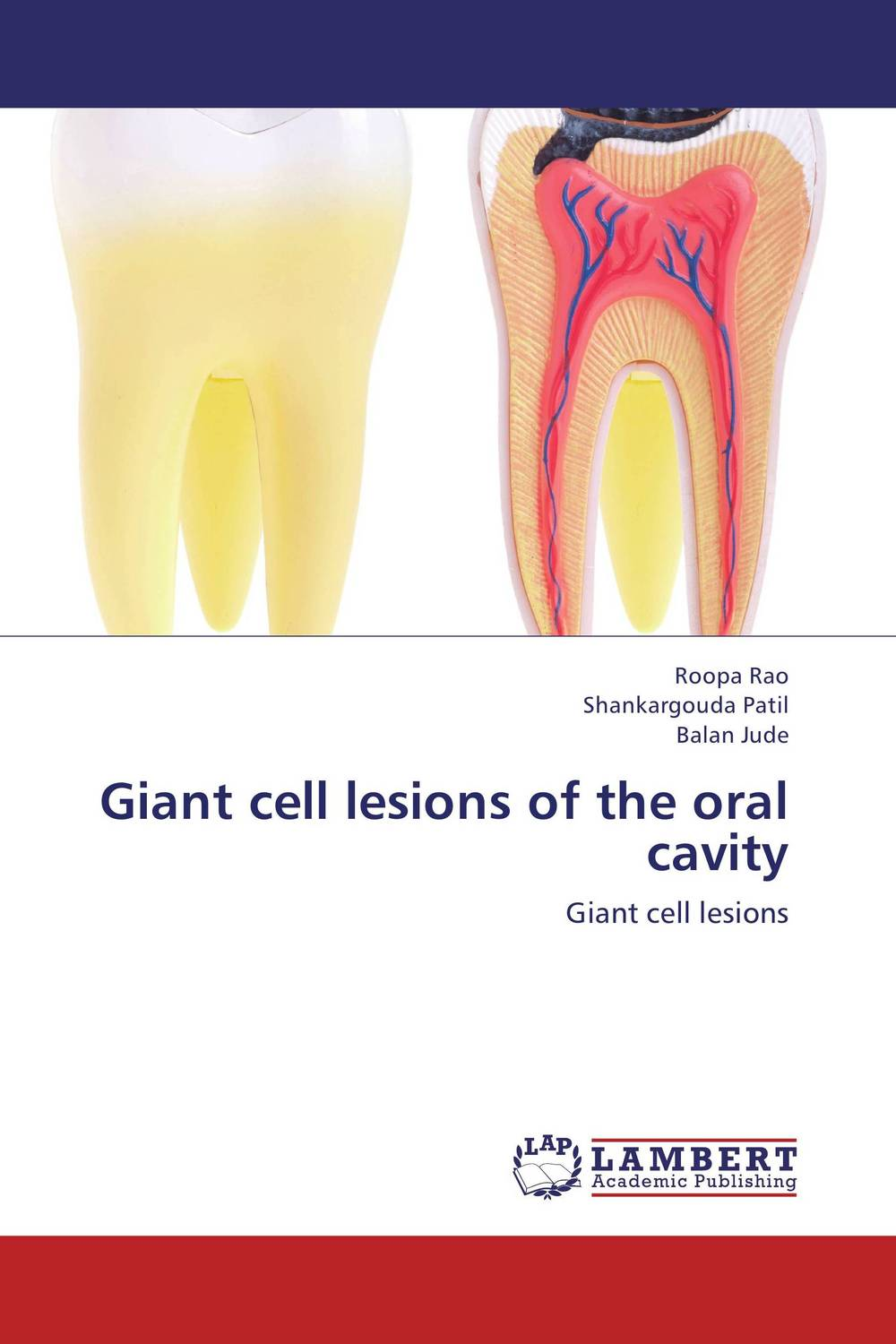 Giant cell lesions of the oral cavity assessment of oral pre cancer and cancerous lesions in gujarat state