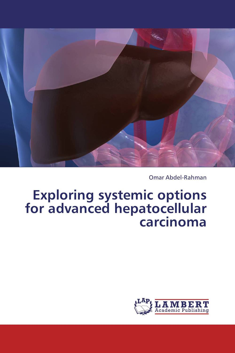 Exploring systemic options for advanced hepatocellular carcinoma