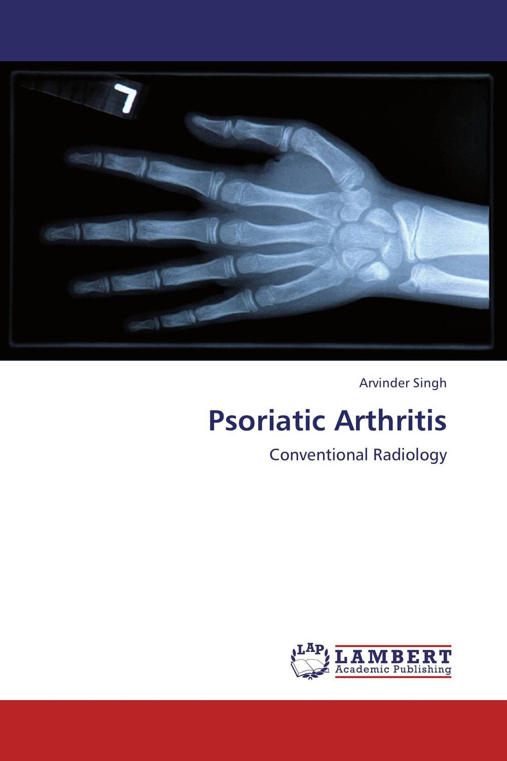 Psoriatic Arthritis new techniques for early diagnosis of rheumatoid arthritis