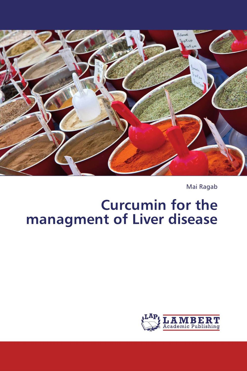 Curcumin for the managment of Liver disease vrunda shah and vipul shah herbal therapy for liver disease