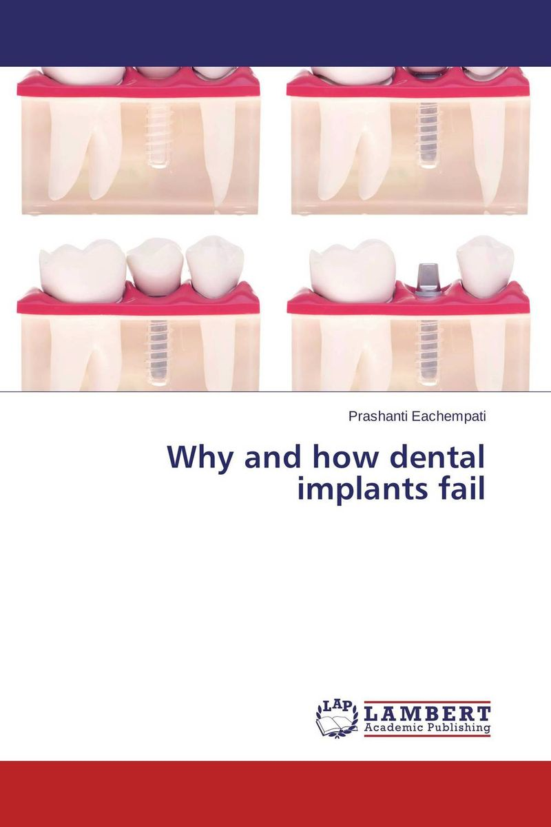 Why and how dental implants fail attachments retaining implant overdentures