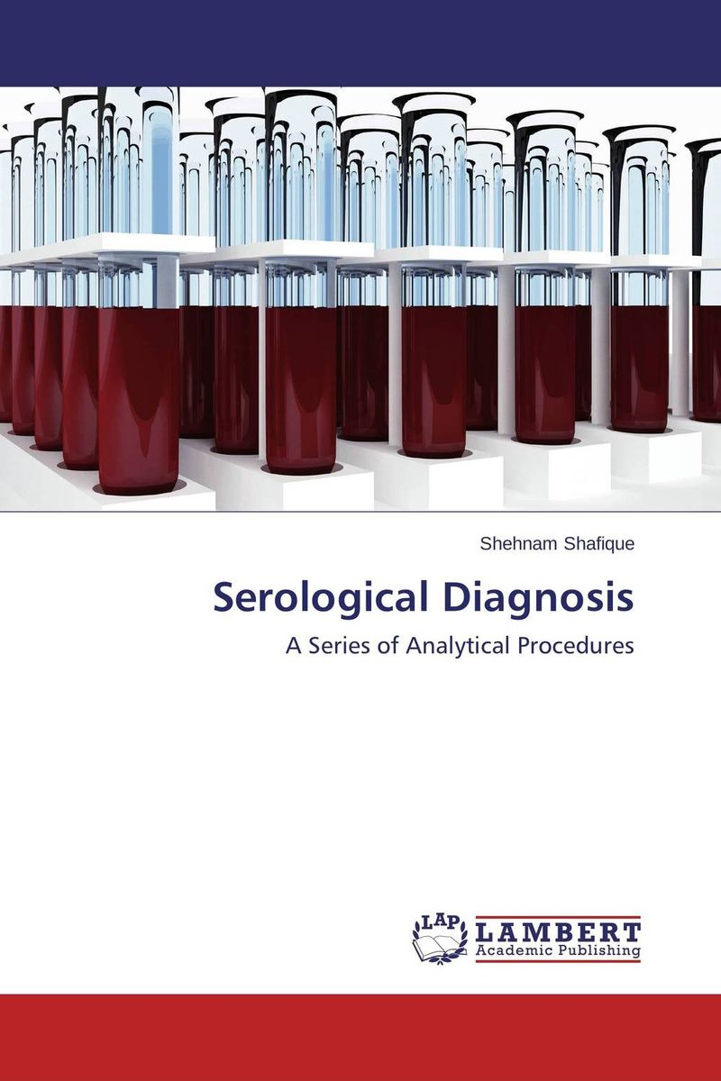 Serological Diagnosis new techniques for early diagnosis of rheumatoid arthritis
