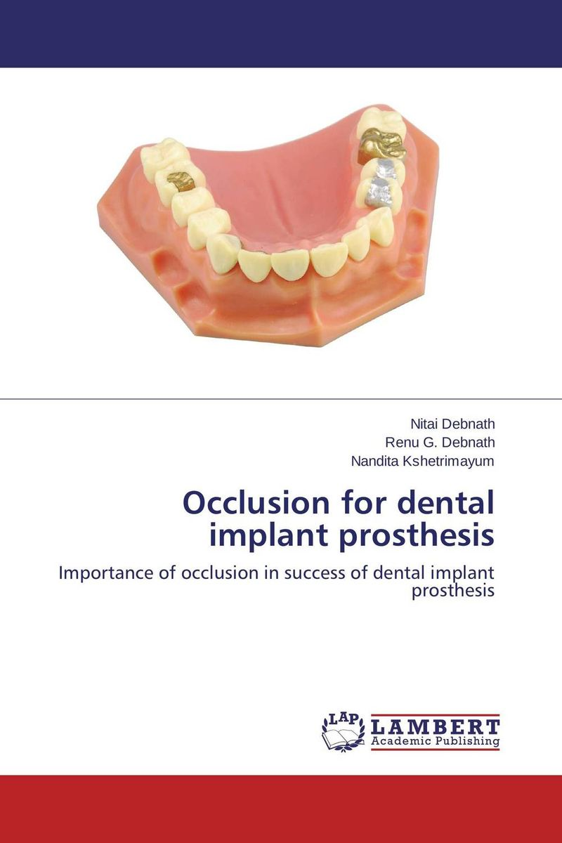 Occlusion for dental implant prosthesis esthetics in implant dentistry
