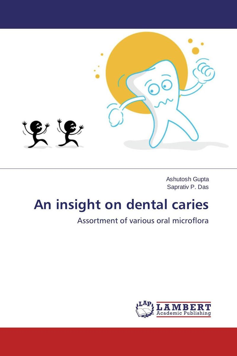 An insight on dental caries analysis of bacterial colonization on gypsum casts