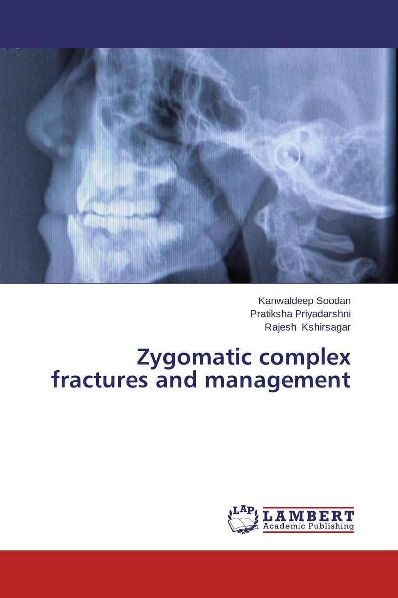 цена на Zygomatic complex fractures and management