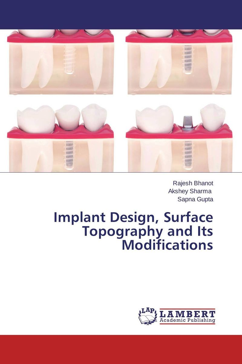Implant Design, Surface Topography and Its Modifications attachments retaining implant overdentures